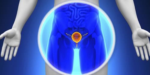 Co roku 4 tys. mężczyzn umiera z powodu raka prostaty