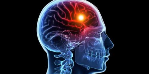 Udar mózgu średnio co 8 minut