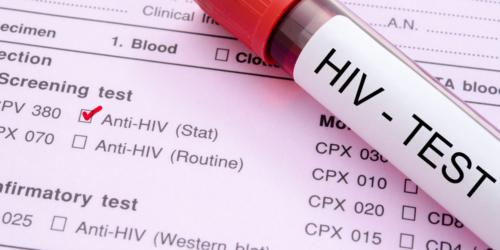 70 proc. nosicieli HIV żyje w nieświadomości