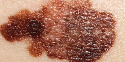 Rudzi częściej chorują na czerniaka