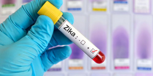 Hiszpania: pierwszy noworodek z wirusem Zika