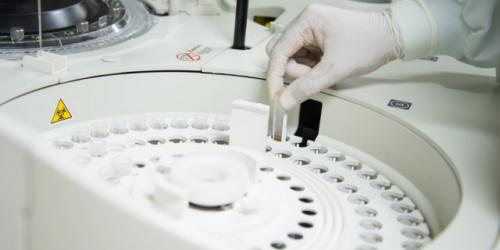 Badania kliniczne rivoroxabanu sfałszowane?