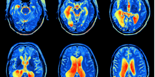 Świecące komórki macierzyste i regeneracja mózgu