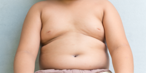 Bypass żołądka skuteczny u otyłych dzieci