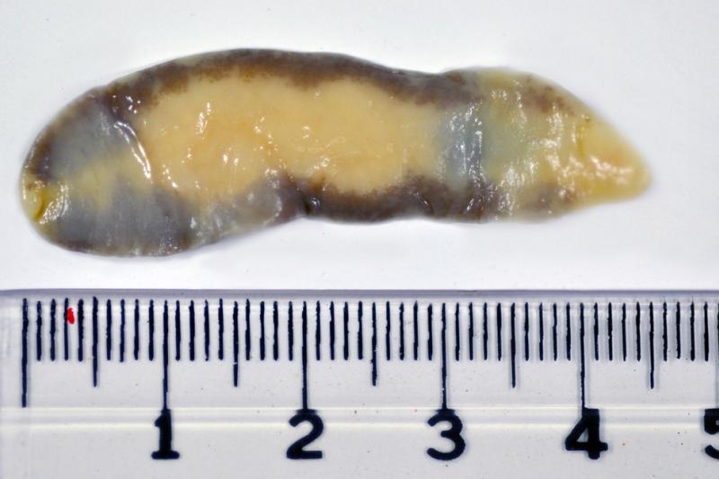 Motylica wątrobowa (Fasciola hepatica) należy do najbardziej skutecznych pasożytów w przyrodzie