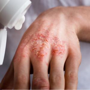 Dermokosmetyki dla pacjentów w łuszczycą