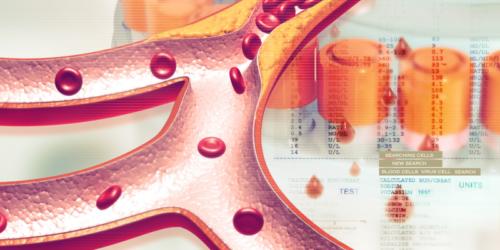 Innowacyjne leki na cholesterol mogą nie spełniać oczekiwań?