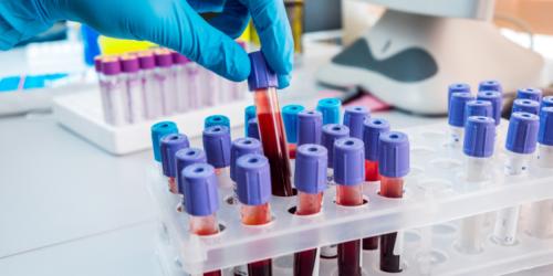 Młoda krew na Alzheimera?