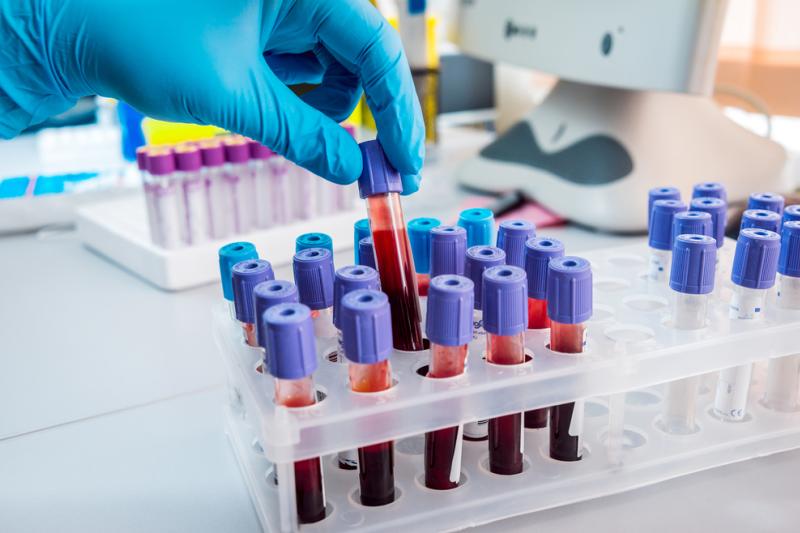 Badacze wierzą, że terapia białkami wyizolowanymi z młodej krwi może okazać się nowym, potencjalnym sposobem leczenia chorób związanych z wiekiem, w tym choroby Alzheimera.