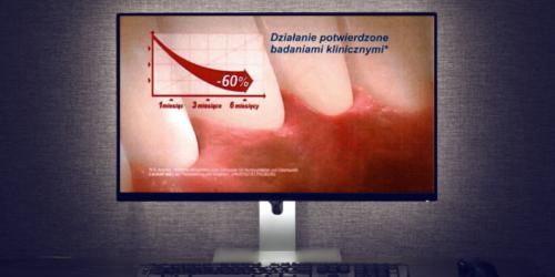 Starcie producentów o reklamę pasty do zębów