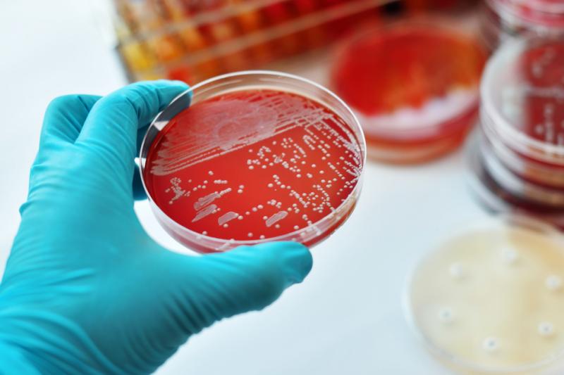 Wstępne dane wykazały, że w rozwoju sepsy kluczową rolę odgrywa nowo odkryte mitochondrialne przeciwwirusowe białko sygnałowe (MAVS). (fot. Shutterstock)