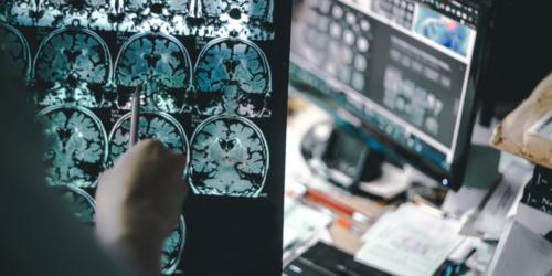 Farmacja dla mózgu