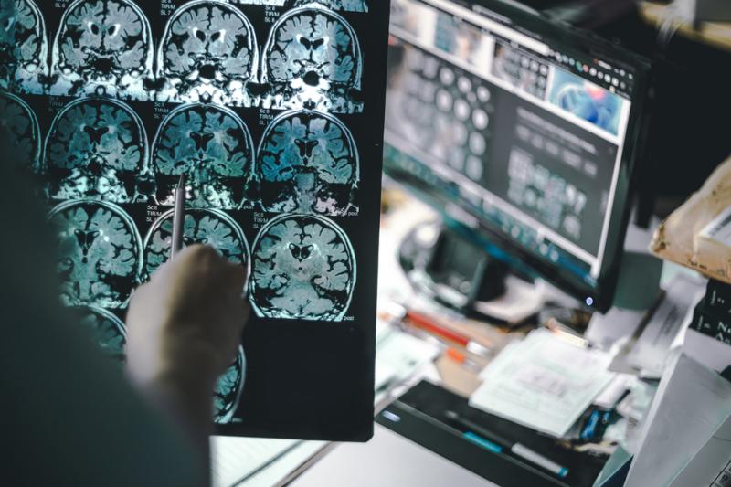 oszukiwania leków bazujące na analizie mechanizmu choroby Alzheimera systematycznie prowadzą do porażek. (fot. Shutterstock)