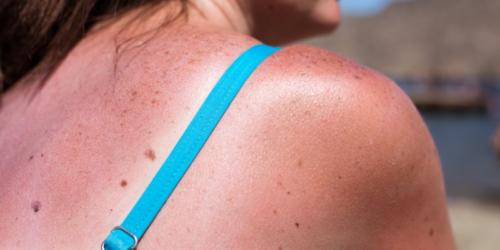 10 leków, przy których należy unikać słońca