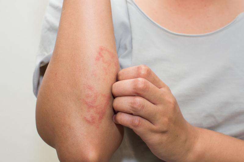 Wielu lekarzy nadal uważa, iż najskuteczniejsze w leczeniu świądu są leki o silnym mechanizmie uspakajającym (fot. Shutterstock)