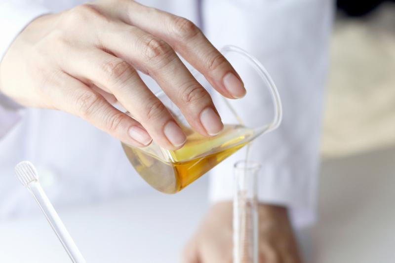 Często w hurtowniach można kupić dla danej formulacji lub objętości jedynie opakowania jałowe, stąd farmaceuta zmuszony jest do wykorzystania takiego opakowania (fot. shutterstock)