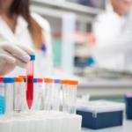 W USA wstrzymane badania nad lekiem na HIV