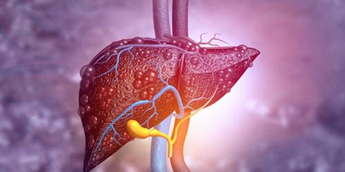 Niealkoholowa stłuszczeniowa choroba wątroby (NAFLD)