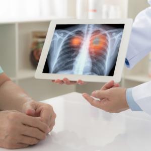 Lubelscy chorzy na raka płuc zostali bez leków