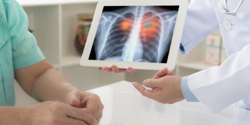 Zaawansowany rak płuca – nowy lek ozymertynib wydłuża życie