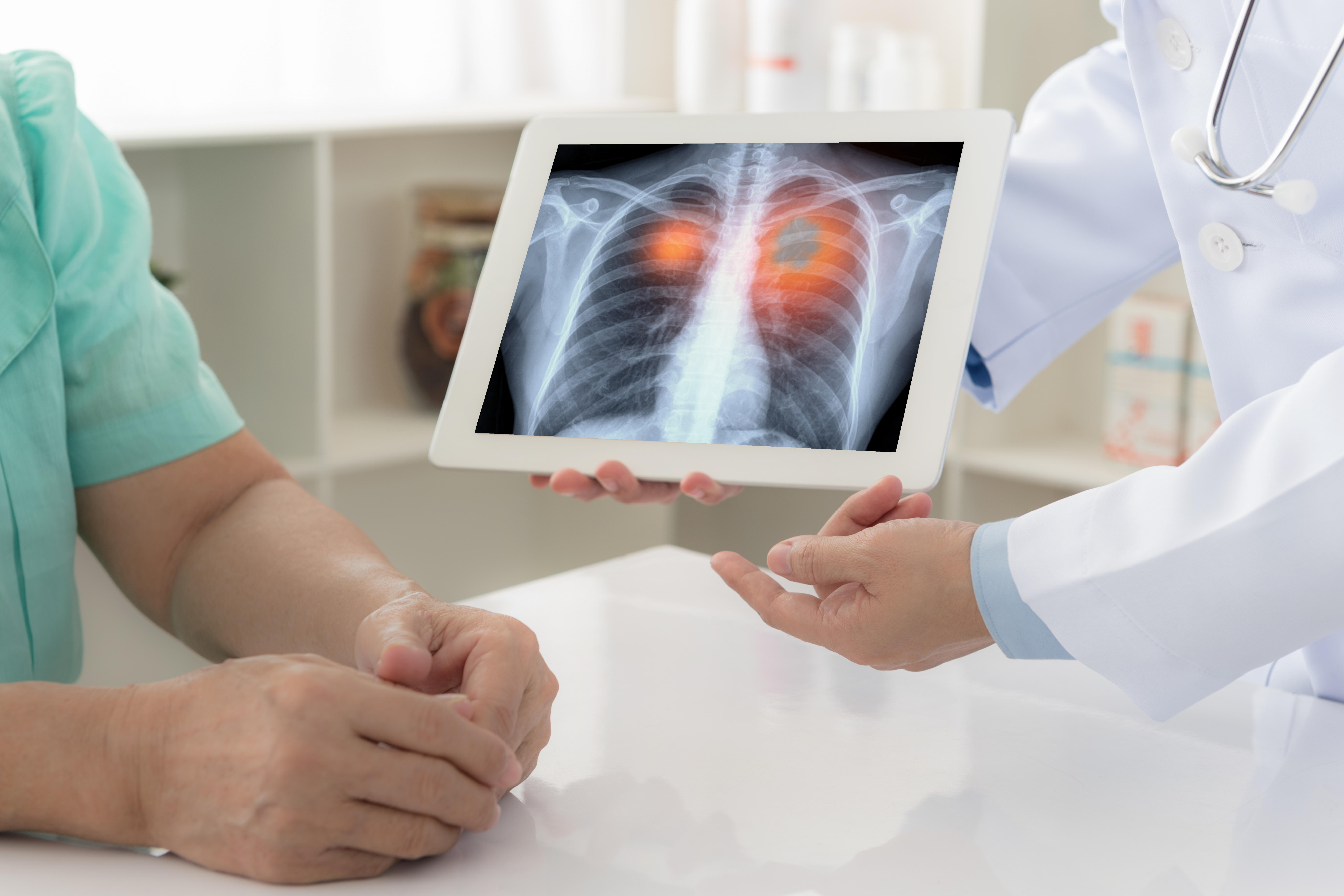 Ozymertynib powinien być standardem w leczeniu pierwszej linii pacjentów z niedrobnokomórkowym rakiem płuca z mutacją w genie EGFR (fot. Shutterstock).