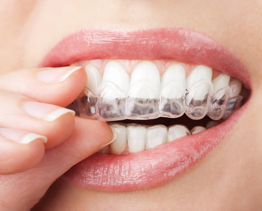 Wybielanie zębów jest kwestią estetyczną. Natomiast bezpieczeństwo tego zabiegu przy użyciu preparatów dostępnych do użytku domowego, to już z pewnością kwestia medyczna (fot. Shutterstock)