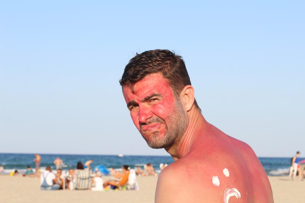 Działania niepożądane, takie jak wysypka, czy zaczerwienienie skóry mogą w przypadku fotoalergizacji pojawić się również na obszarach skóry, które nie były narażone na działanie promieniowania słonecznego (fot. Shutterstock)
