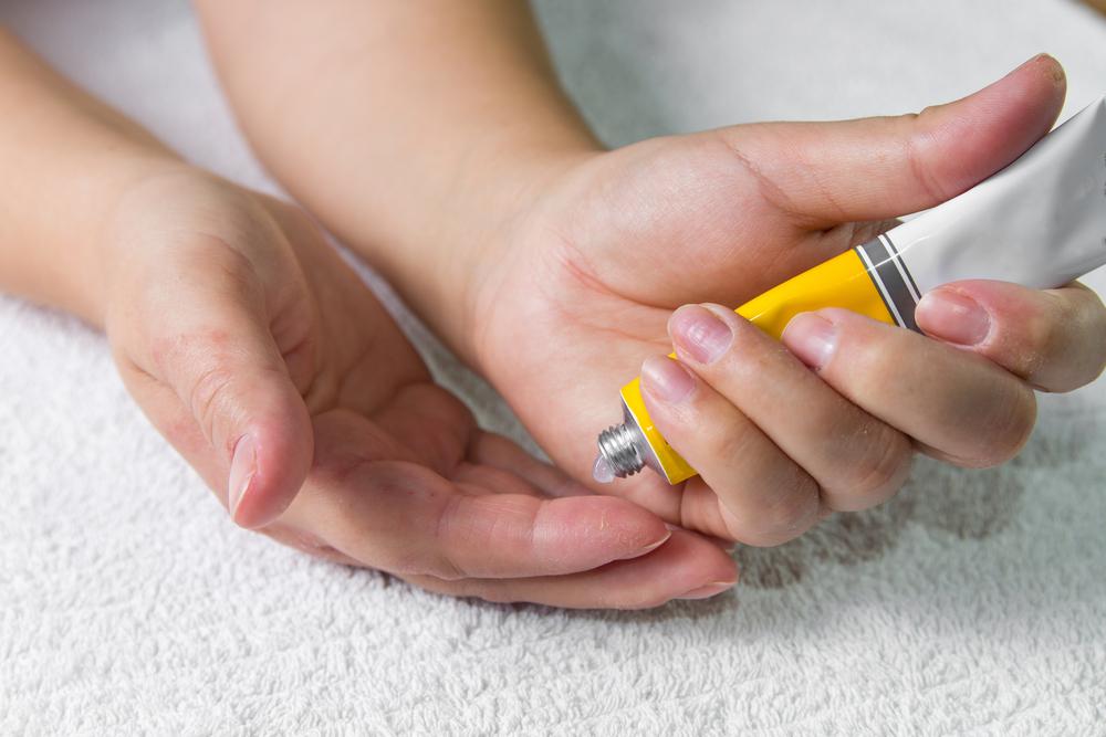 Miejscowa aplikacja diklofenaku na skórę praktycznie pozbawiona jest obciążenia ciężkimi ogólnymi działaniami niepożądanymi (fot. Shutterstock)