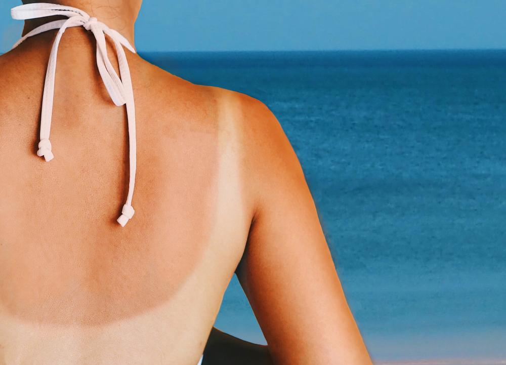 W kosmetykach ochrony przeciwsłonecznej stosowane są 2 rodzaje filtrów, które różnią się mechanizmem działania: filtry nieorganiczne (fizyczne) oraz organiczne (chemiczne) (fot. Shutterstock)