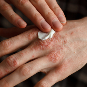 Łuszczyca okiem farmaceuty. To nie tylko choroba skóry…