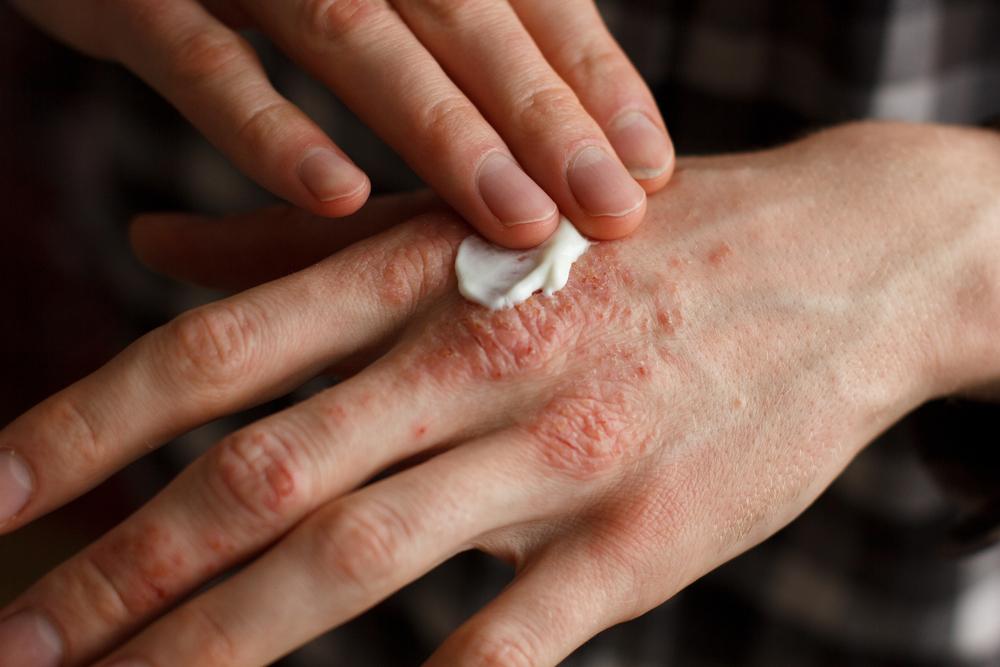 Coraz częściej, w leczeniu łuszczycy wykorzystywane są właściwości dziegcia, który jest dostępny przede wszystkim w postaci maści, i pasty, ale i mydeł do codziennej pielęgnacji (fot. Shutterstock)