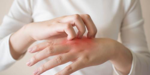 Skóra atopowa u dorosłych – pielęgnacja oraz sposoby łagodzenia swędzenia i innych dolegliwości AZS