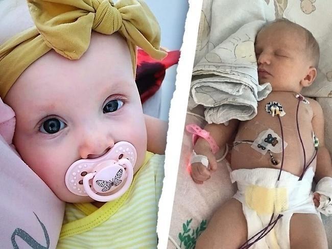 Rodzice Marysi szukali pomocy wszędzie, a znaleźli ją u lekarza w Genewie w Szwajcarii, który podjął się operacji dziewczynki(fot. siepomaga.pl).