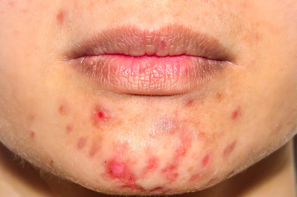 Pacjenci po zdiagnozowaniu trądziku różowatego często są zdezorientowani. Jak może im pomóc farmaceuta? (fot. Shutterstock)