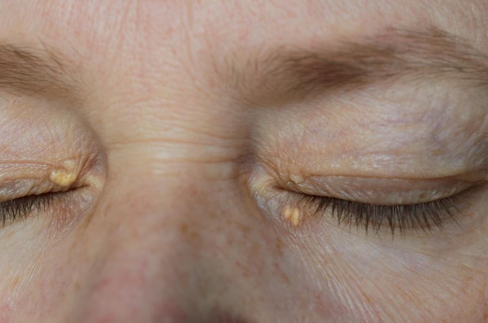 Charakterystycznym objawem hipercholesterolemii rodzinnej są natomiast, tzw. kępki żółte. Są to złogi cholesterolu, które odkładają się na skórze w obrębie kolan, łokci, ścięgna Achillesa i oczu (fot. Shutterstock)