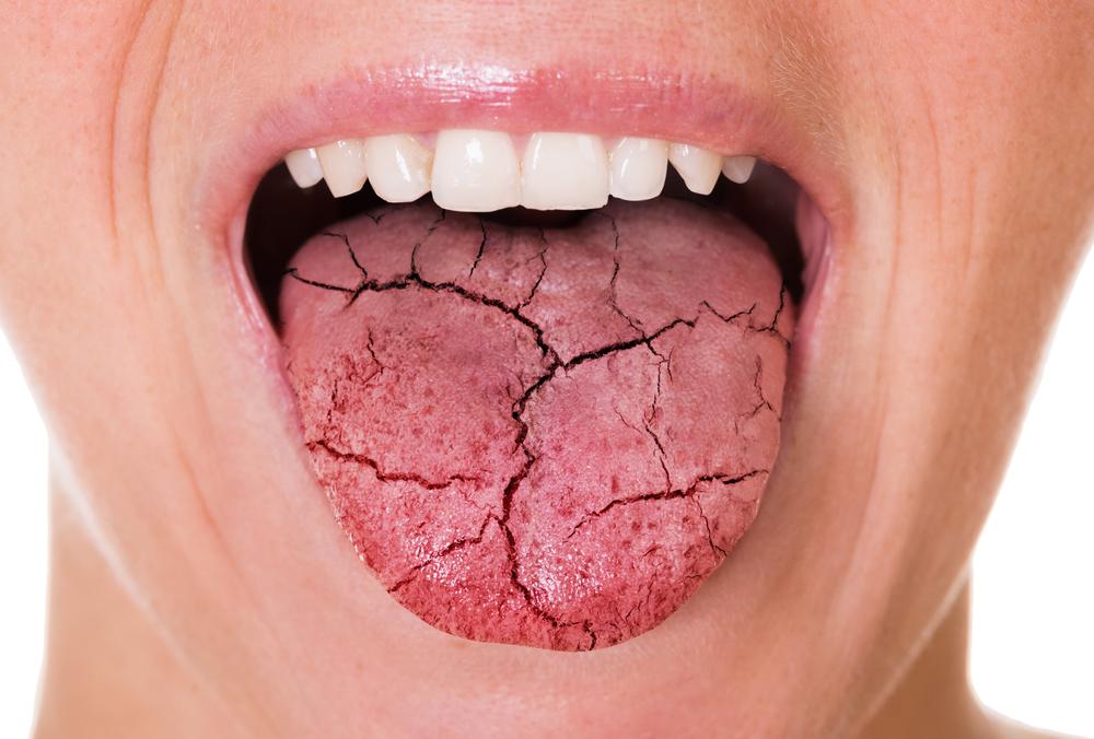 Kserostomia utrzymująca się przez dłuższy czas może wywoływać nie tylko zakażenia grzybicze i bakteryjne w jamie ustne